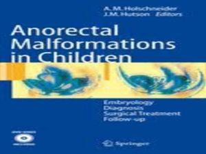 Holschneider Anorectal Malformations in Children